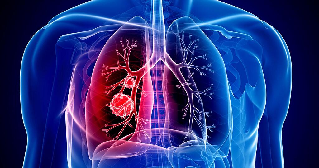 Dass die Immuntherapie Lungenkrebs effektiv bekämpfen kann, ist in fast allen Stadien möglich. © Sebastian Kaulitzky / shutterstock.com