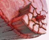 Muskel-Sehnenverletzungen im Sport