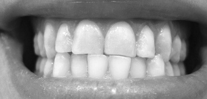 Im Bild ein Abrasionsgebiss – vursacht durch Bruxismus, Zähneknirschen. © DRosenbach / wikimedia