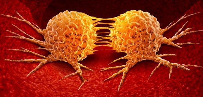 Metastasenbildung / Krebszellen / Metastasen © Lightspring / shutterstock.com
