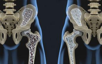 Die Osteoporose entsteht aus einem Missverhältnis zwischen Knochenab- und -aufbau, dadurch kommt es zu Veränderungen der Knochenmasse und der Mikroarchitektur des Knochengewebes. © Javier Regueiro / shutterstock.com