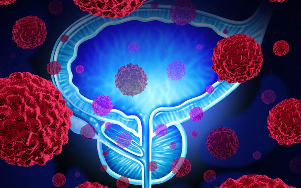 Prostatakrebs © Lightspring / shutterstock.com