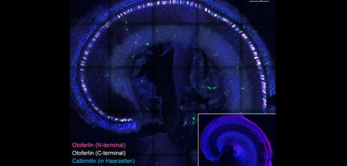Apikale Windung eines Innenohrs einer Dual-AAV behandelten Otoferlin-knock-out Maus, mit den in blau angefärbten äußeren und inneren Haarzellen. Immunhistochemisch wurde das von Viren transportierte Otoferlin (magenta und weiß) in den inneren Haarzellen sichtbar gemacht. Kleines Bild: ein genauso angefärbtes, aber unbehandeltes Innenohr, dem Otoferlin fehlt. © umg