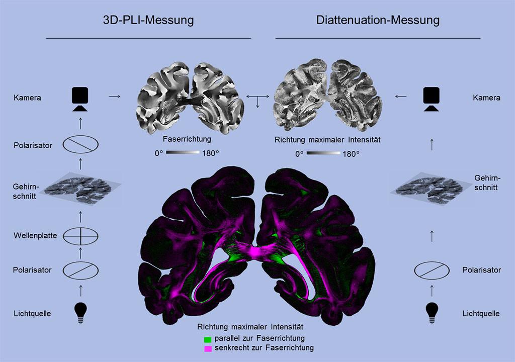 So funktioniert das neue Diattenuation Imaging-Verfahren. © Forschungszentrum Jülich / Miriam Menzel, Tobias Schlößer
