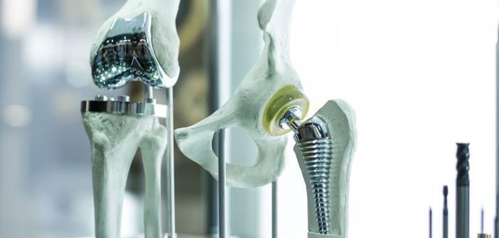 Knieprothesen und Hüftprothesen – Haltbarkeit als Erfolgsstory. © Monstar Studio / shutterstock.com