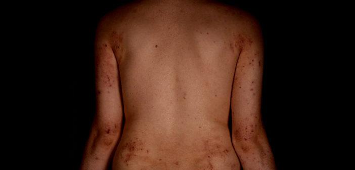 Rücken mit Neurodermitis (atopischer Dermatitis). (Bild: Dermatologische Klinik, USZ)