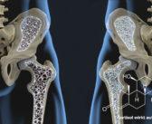 Glukokortikoid-Therapie kann sekundäre Osteoporose verursachen