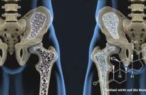 Cortisol kann auch zu krankhaften Knochenschwund führen. Dabei kann eine Glukokortikoid-Therapie eine sekundäre Osteoporose verursachen. © Javier Regueiro / shutterstock.com