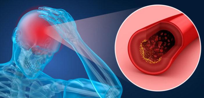 Gerinnungshemmer bei Dissektion – einer seltenen Ursache für Schlaganfall. © Alex Mit / shutterstock.com