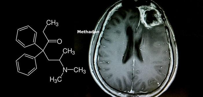 Methadon bei Krebs: enttäuschende Wirkung beim Glioblastom. © O_Akira / shutterstock.com
