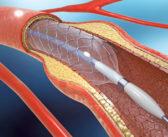 Myokardrevaskularisation für die KHK-Therapie bzw. Herzmuskeldurchblutung