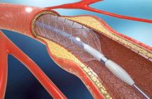 Myokardrevaskularisation © Christoph Burgstedt / shutterstock.com