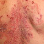 Blasenbildende Autoimmunerkrankungen der Haut –bullöse Dermatosen (Pemphigus) © Dermatology11 / shutterstock.com