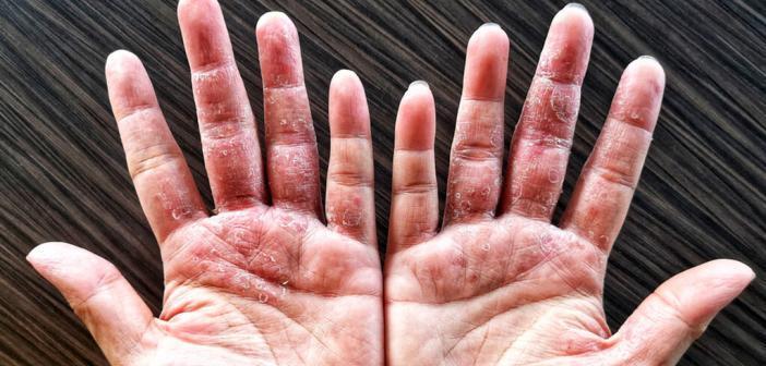 Chronisches Ekzem (Neurodermitis, atopische Dermatitis) © PornpipatS / shutterstock.com