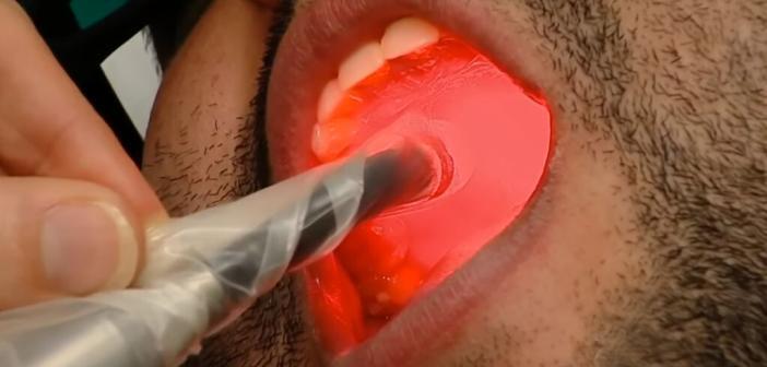 Lichttherapie bei Krebs mit Photobiomodulation.