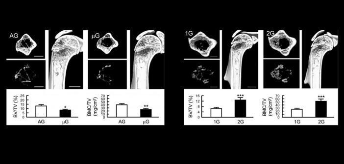 Muskeln und Knochen werden durch die Schwerkraft verändert