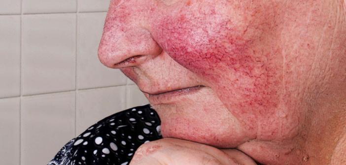 Die Hautkrankheit zeigt wird in drei Erscheinungsformen eingeteilt. © Lipowski Milan / shutterstock.com