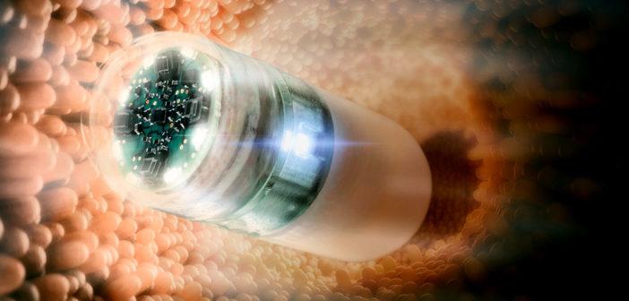 Dünndarm Diagnose schneller mit der neuen Endoskopie-Kapsel