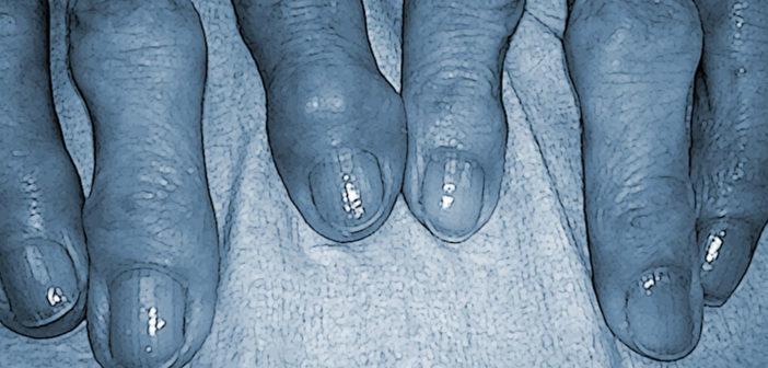 Kleine Gelenke der Finger können teils heftig schmerzen.