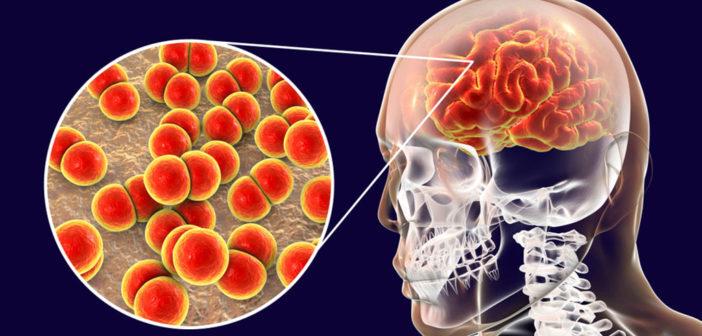 Bakterielle Meningitis durch Pneumokokken gehören weltweit zu den häufigsten Infektionskrankheiten. © Kateryna Kon / shutterstock.com