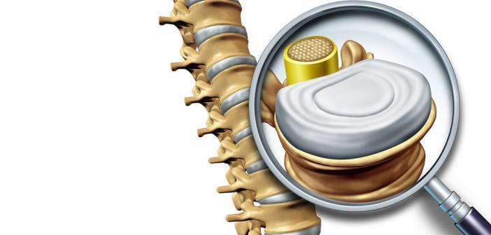 Unsere Bandscheiben müssen jahrzehntelang große Belastungen aushalten. Bei einem schmerzhaften Bandscheibenvorfall ist es mit normalen Röntgenbildern gar nicht so leicht, die beste Therapie zu finden. © Lightspring / shutterstock.com