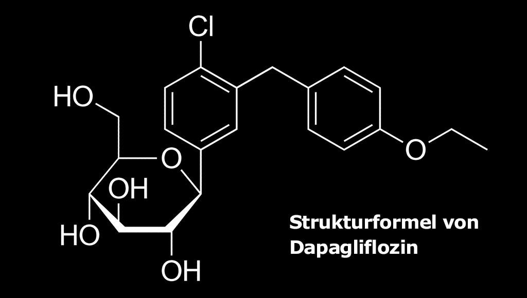 Dapagliflozin wirksam bei Herzinsuffizienz.