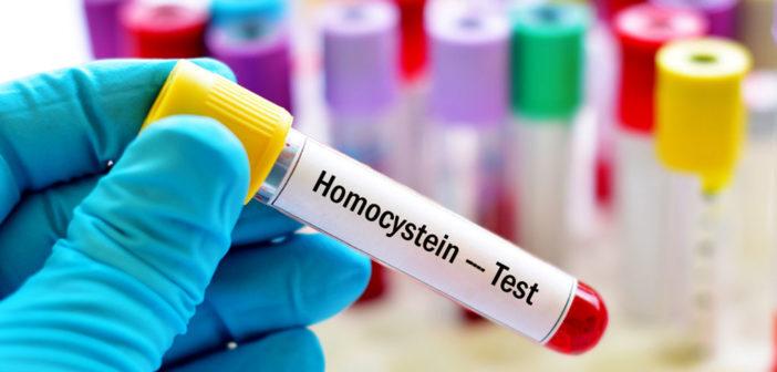 Die Aminosäure Homocystein hängt auch mit der Entstehung einer Arteriosklerose zusammen. © Jarun Ontakrai / shutterstock.com