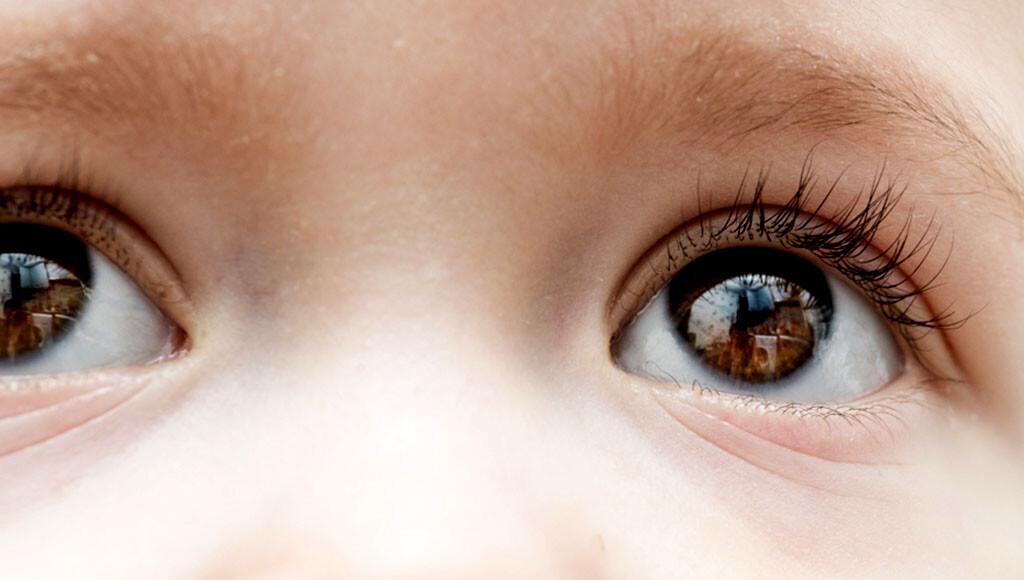 Kindliches Glaukom – Grüner Star bei Neugeborenen, Säuglingen und Kindern. © smirart / shutterstock.com