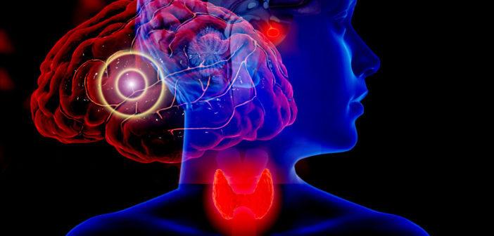 Hypothyreose und Migräne stehen in Zusammenhang. © medistock / Kateryna Kon / shutterstock.com