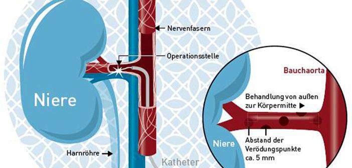Verödung der Nierennerven © Katholisches Klinikum Essen / CC BY-SA 3.0 / wikimedia