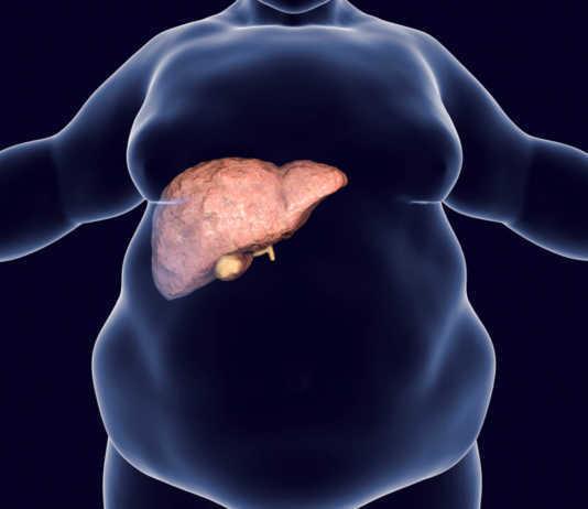 Immer häufiger leiden Menschen unter einer Fettleber. Mit der richtigen Ernährung und ausreichend Bewewgung kann man sich aber sehr gut eine gesunde Leber erhalten. © Kateryna Kon / shutterstock.com