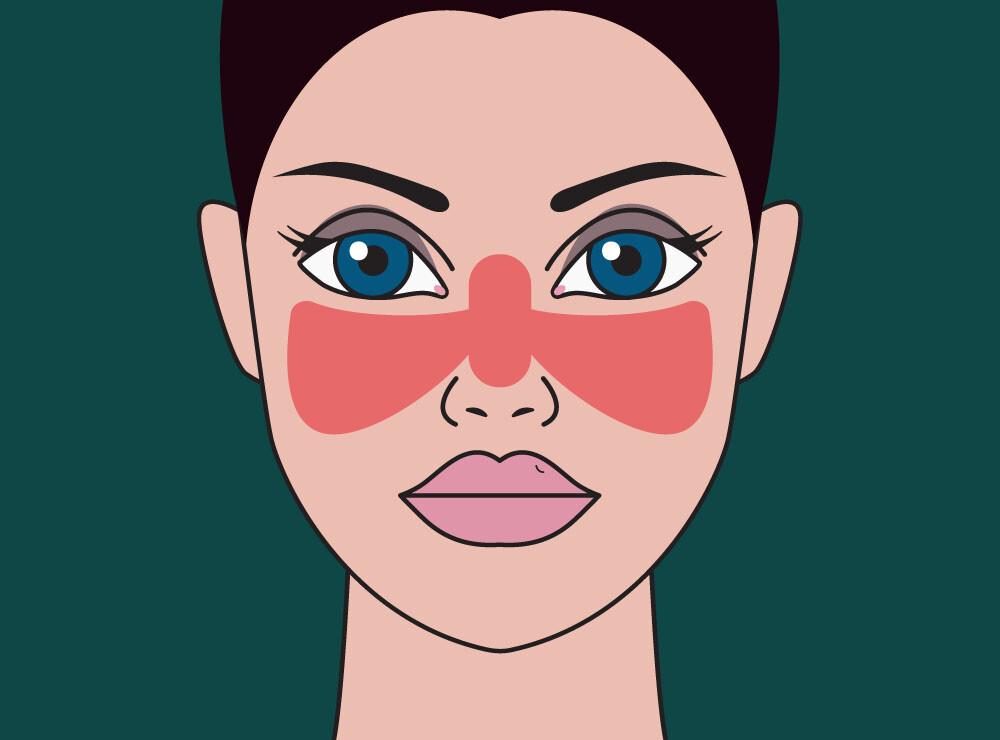 Systemischer Lupus erythematodes, auch als Roter Wolf bezeichnet. © Yuliya Chsherbakova / shutterstock.com
