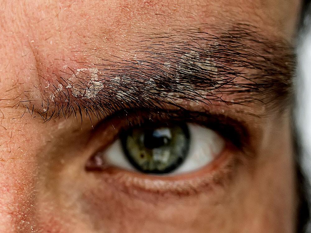 Psoriasis-Patienten haben eine höheres Risiko für einen Mangel an Vitamin D © Serge Vo / shutterstock.com