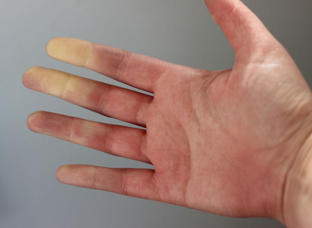 Hand einer Frau mit Raynauld-Syndrom. © Amanda Uhlin / shutterstock.com