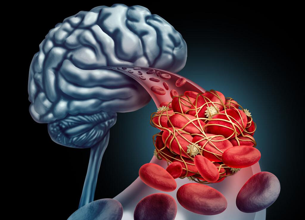 Auch bei größerem Zeitfenster von bis zu neun Stunden kann in speziellen Fällen die Lysetherapie bei Schlaganfall zur Behandlung von Blutgerinnseln im Gehirn. © Lightspring / shutterstock.com